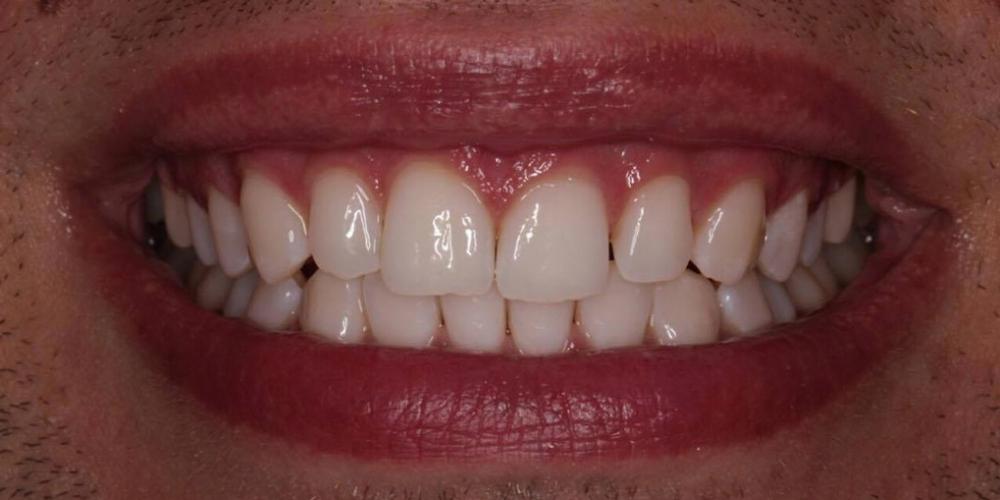 Фото после отбеливания зубов по технологии холодного отбеливания Zoom 4. Результат отбеливание зубов Zoom 4