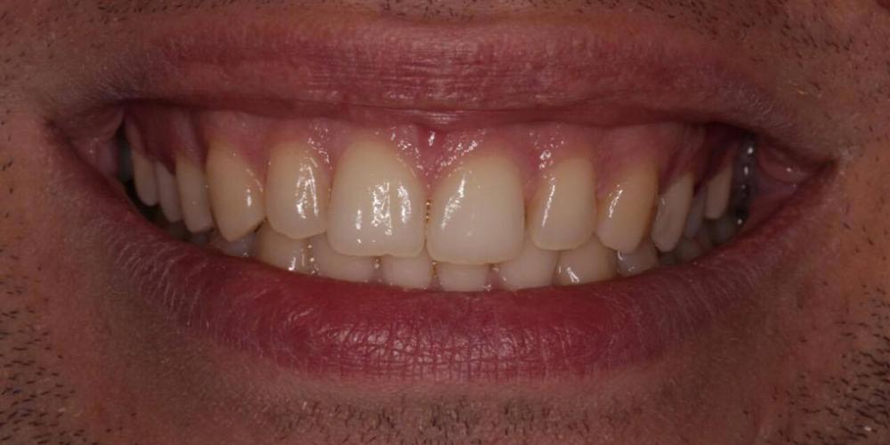 Фото до отбеливания зубов. Результат отбеливание зубов Zoom 4