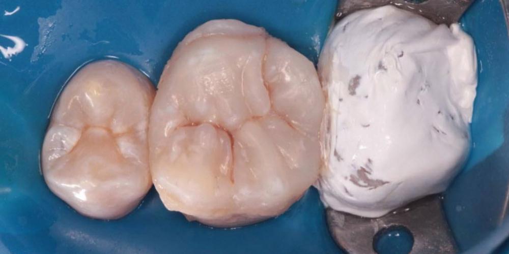 Проведена коррекция в прикусе и проверка жевательных движений.  Зубы изолированны с помощью рабердама и накладка фиксирована на разогретый до 55 градусов композит,то-есть связь с зубом супер надёжная! Результат восстановления зуба композитной накладкой