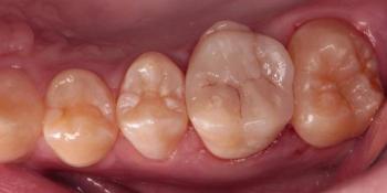 Результат восстановления зуба композитной накладкой фото после лечения